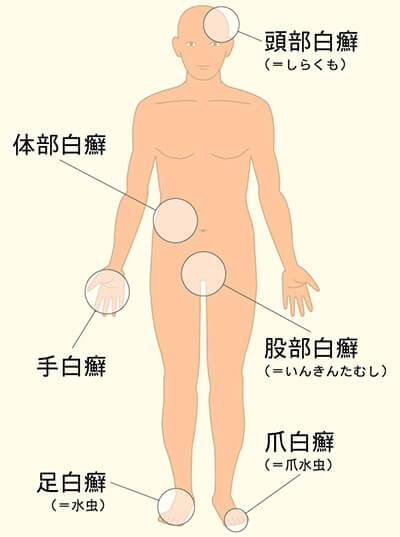 白癬菌(はくせんきん)が繁殖する部位